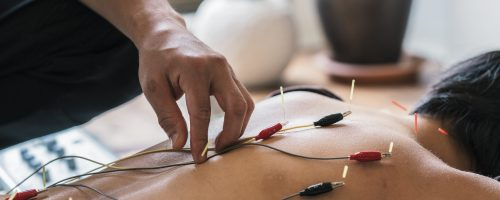 Therapist Giving acupuncture Treatment To Young Asian Woman